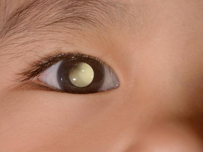 Retinoblastoma: o câncer de olho mais frequente nas crianças