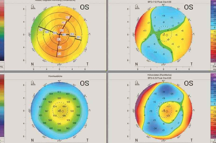 Topografia de córnea